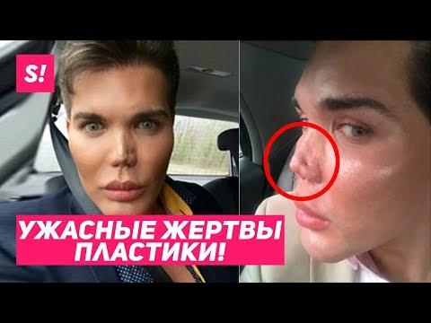 САМЫЕ ЖУТКИЕ ЖЕРТВЫ ПЛАСТИКИ / ЖИВЫЕ \КЕНЫ\ 😨😱 - DomaVideo.Ru