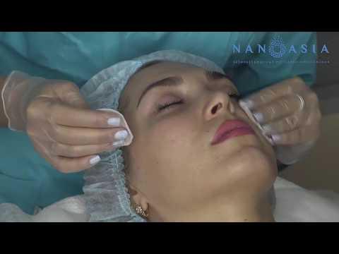 Nanoasia - безинъекционное омоложение
