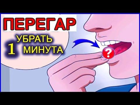 ПЕРЕГАР - КАК БЫСТРО ИЗБАВИТЬСЯ ОТ ЗАПАХА (13 способов) - DomaVideo.Ru