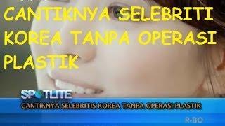 Video Spotlite Trans 7 - Cantiknya Selebritis Korea Tanpa Operasi Plastik MP3, 3GP, MP4, WEBM, AVI, FLV November 2017