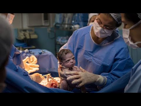 Caesarean section for pregnant give birth to 4 children