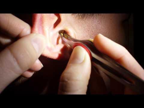 usuwanie-nadmiaru-wosku-z-uszu