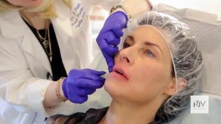 <VIDEO> The Most Effective Procedure for Lifting Lower Third of the Face: PDO Thread Lift