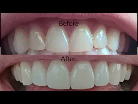 Dental Veneers Procedure Overview