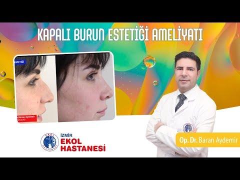 Kapalı Burun Estetiği Ameliyatı - Op. Dr. Baran Aydemir - İzmir Ekol Hastanesi