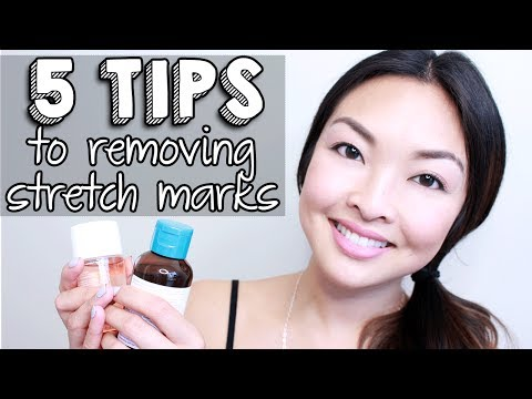 HOW TO: Get Rid Of Stretch Marks INSTANTLY!