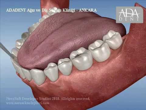 Endodonti Kanal Tedavisi