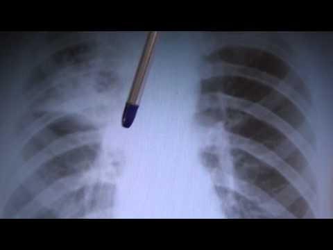 Виды туберкулеза на рентгене