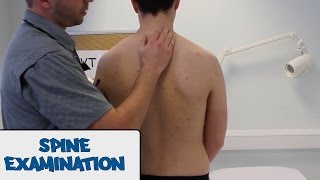 Spine Examination - OSCE Guide