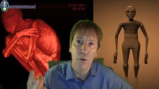 http://www.davidparcerisa.orgEl reciente hallazgo de una momia con extraña anatomía en Perú, ha desatado una gran polémica. Presentada como una momia hibrido-alienígena, el ser tiene 3 dedos en manos y pies... pero, realmente podría haber sido manipulada?
