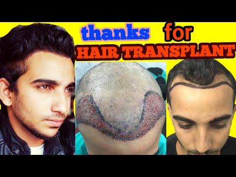 ??? ???? ??? ??? ???? ???? ???????????? ?? thanks for hair TRANSPLANT 2018_A plasztikai sebészet kulisszatitkai. A legmodernebb eljárások, és orvosi hibák. Szilikon völgy