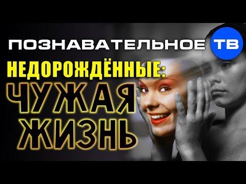Недорождённые. Чужая жизнь (Познавательное ТВ Наталья Манежева) - DomaVideo.Ru