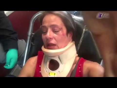 Golpean a actriz en el Parque México