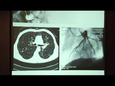 Хирургическое лечение больных раком легкого