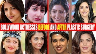 Video SHOCKING Plastic Surgery of Bollywood Actresses BEFORE & AFTER | Sridevi,Anushka,Aishwarya,Priyanka MP3, 3GP, MP4, WEBM, AVI, FLV Agustus 2018