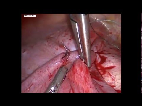 Релаксация диафрагмы - торакоскопия. Relaxation of the diaphragm - thoracoscopy