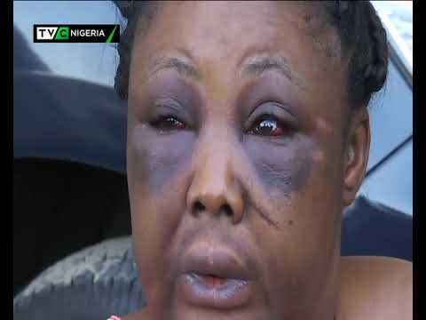 Crime Watch: Woman escapes death after encounter with taxi robbers
