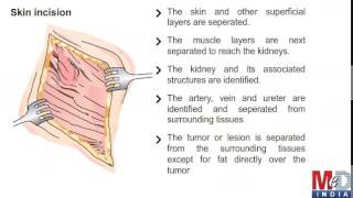 Partial nephrectomy