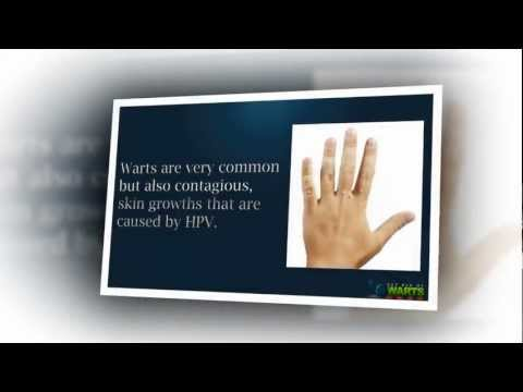Treatment for Warts – Best Treatment for Warts