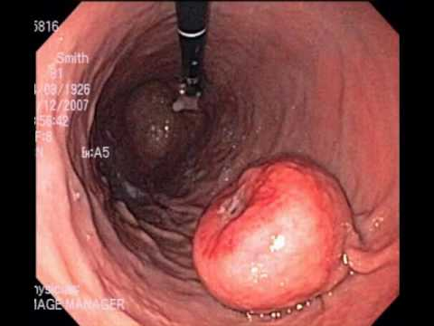 Exicion OfTthe GastrointestinaI Stromal Tumor Of The Proximal Stomach Using A Single Port Access Surgery