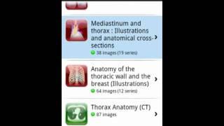 IMAIOS e-Anatomy YouTube video