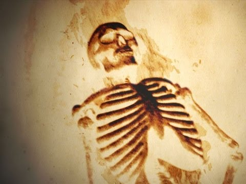 medical - 10 Unexplained Medical Conditions From the bizarre to the disturbing, here are 10 medical conditions that have no known cause. Music = Entrapment 3 by Terry ...