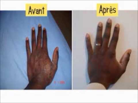 comment guerir pityriasis versicolor