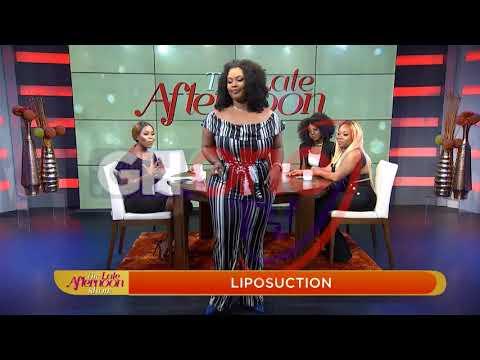 I did liposuction because I lost deals for being fat – Actress_A plasztikai sebészet kulisszatitkai. A legmodernebb eljárások, és orvosi hibák. Szilikon völgy