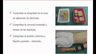 Umh1723 2012-13 Lec015a Electrodiagnóstico De Estimulación. Metodología De Las Curvas I - T.