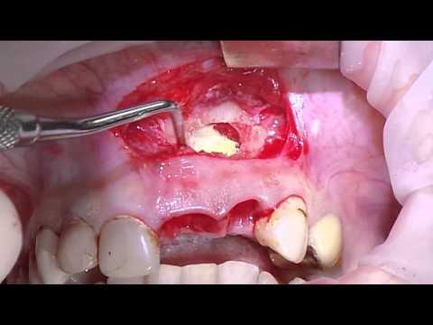 Удаление радикулярной кисты верхней челюсти хирурги-ческим путем. Часть 2