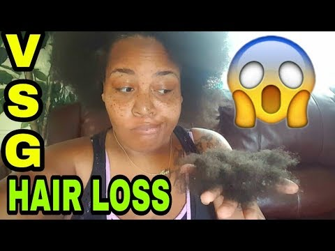 VSG 2018: LOSING HAIR AFTER SURGERY ● 2 MONTHS OUT