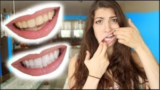 How to Whiten Teeth in 2 Minutes! [guaranteed whiten teeth] - YouTube