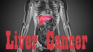 Liver cancer is an interesting disease. As with all cancers it affects the entire body, not just where it's centralized. The liver is one of the most important organs in ...