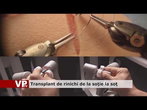 Transplant de rinichi de la soție la soț
