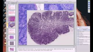 Medical School Pathology, 2013 Season, Session #53: WBC-II