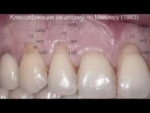 Практикум по пластике мягких тканей десны в области зубов и имплантатов. Часть 1