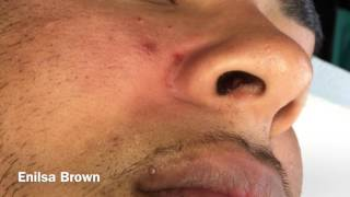 This patient was not pre-treated prior to coming in so skin was not as receptive to extractions but over all he did great! after this treatment we started him on our wash!If you like to donate to Daryl's GoFundMe account the link is in his videos!Facebook: https://www.facebook.com/Enilsa-Skin-Essentials-Acne-Clinic-345686595512232/