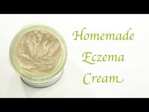 Homemade Eczema Cream (видео)
