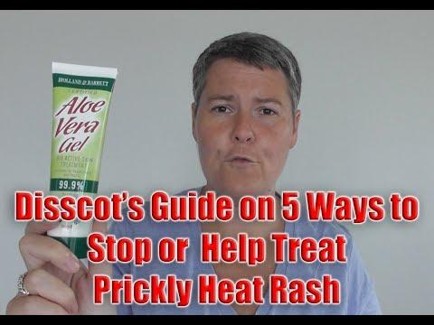5 Ways to Stop or Help Treat Prickly Heat Rash