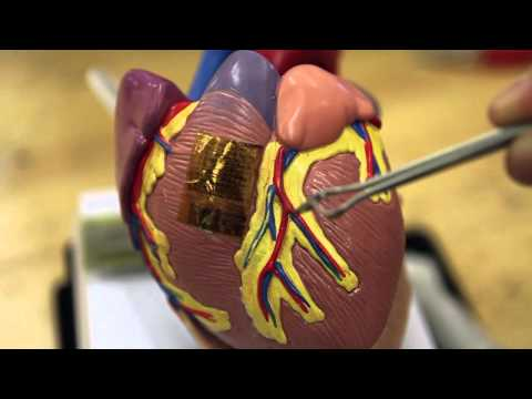 Science Nation – Electronic Tattoo Monitors Brain, Heart and Muscles