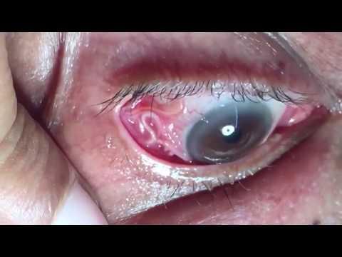 Sán chó dài 15cm ký sinh trong mắt người