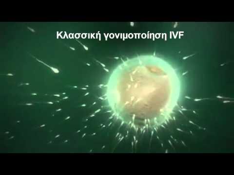 Κλασσική γονιμοποίηση IVF