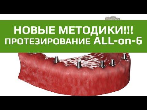 Комплексная имплантация зубов All-on-6