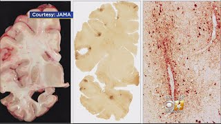 New Study Shows Brain Damage In 99 Percent Of Deceased NFL Pla...
