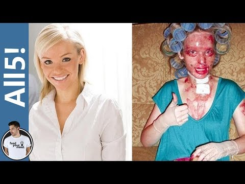 Video 5 Horrific Acid Attacks! download in MP3, 3GP, MP4, WEBM, AVI, FLV January 2017