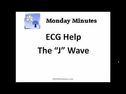 ECG Help | J Wave