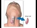 Tiroid ameliyatı kimlere gerekir? Riskleri nelerdir?