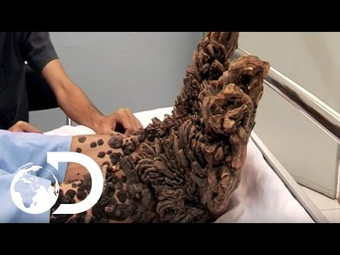 Video My Shocking Story: Treeman the Cure - Hospital Life download in MP3, 3GP, MP4, WEBM, AVI, FLV January 2017