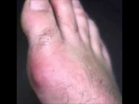 Pictures of Gout and Tophaceous Gout