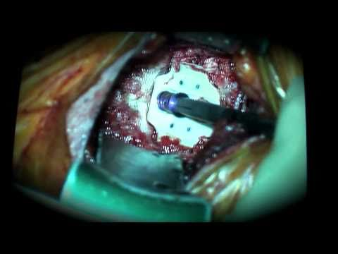 Neck Surgery: Anterior Cervical Discectomy and Fusion (C SPINE)